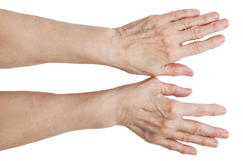 are your hands giving away your age?